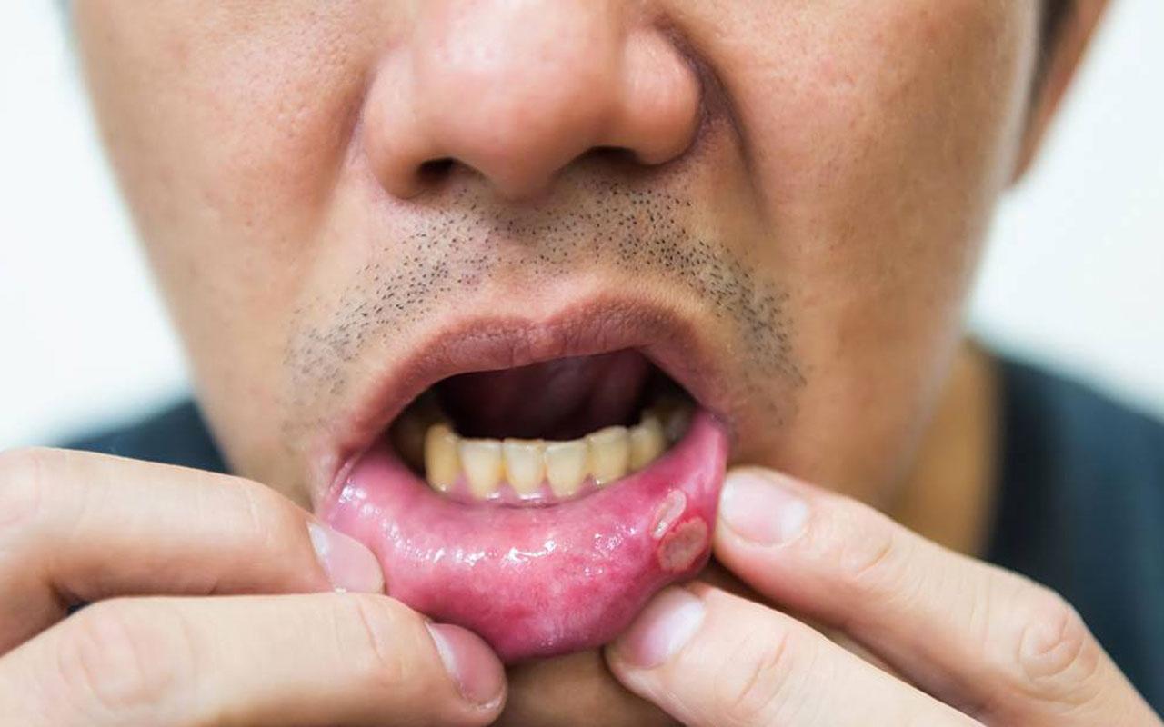 Aft ne zaman tehlikeli ağız yarası için hangi doktora gidilmeli?